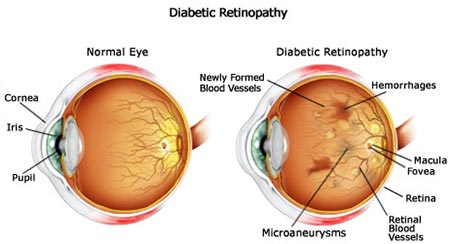 Diabetes Diabetic Retinopathy
